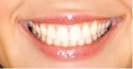 Smile With White Fillings