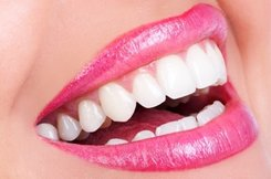 Smile With Whitened Teeth